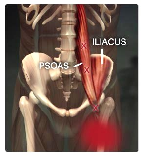 What Is A Psoas And Where Is It?