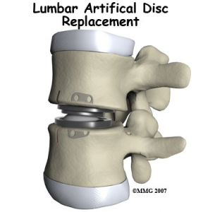 disc lumbar replacement